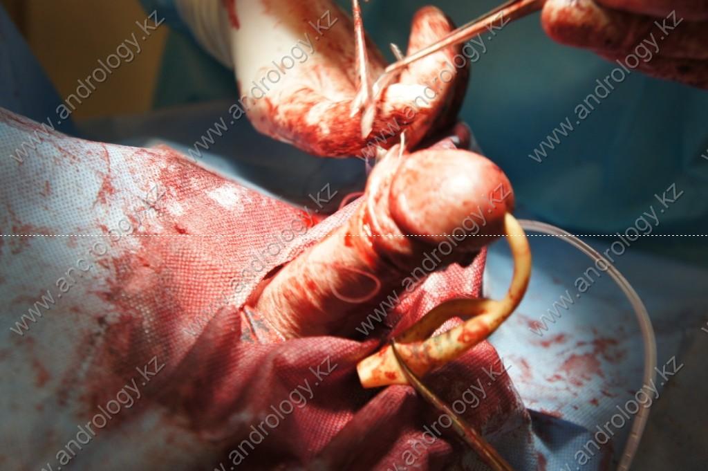 Протезирование полового члена с увеличивающей кавернопластикой фото 4