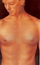 Лечение гинекомастии фото